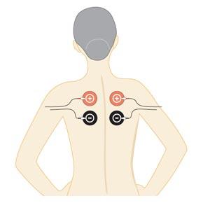 tratamiento electrodos 02