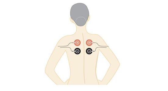 Tratamiento con electrodos