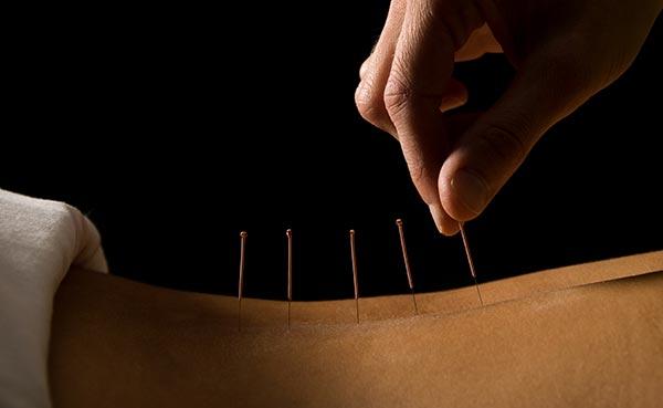 Mucho más que acupuntura